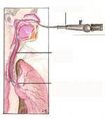 broncoscopia2